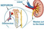 Nephrotic Syndrome: From simple to complex